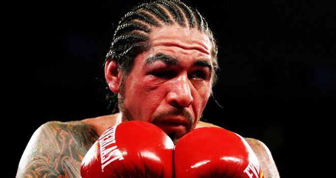 Antonio Margarito: Suffered serious eye damage in his last two fights