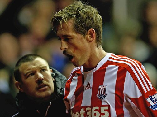 Peter Crouch: Lost two teeth on Wednesday night