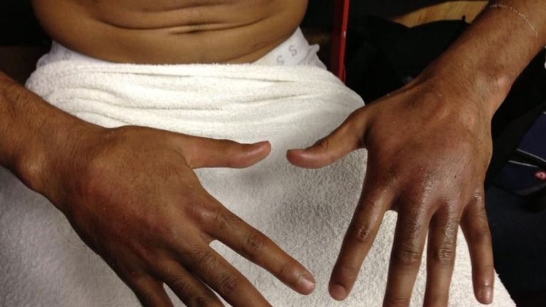 Amir Khan's hands after his fight with Carlos Molina