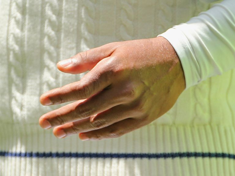 Kumar Sangakkara's fractured hand