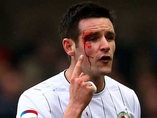 Scott Dann shows the scars of battle