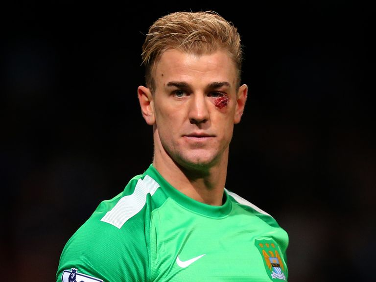 Joe Hart: Back to top form against Palace
