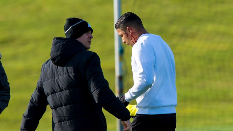 Celtic's Emilio Izaguirre (right) leaves the training field with physio Tim Williamson after clashing with Nadir Ciftci