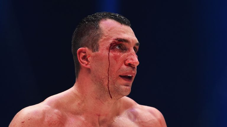 A bloodied Klitschko looks on during the fight