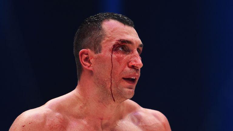Кровь чемпиона