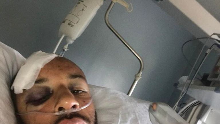 James Ellington is still on the road to recovery after suffering multiple injuries in a motorbike crash - credit: Instagram/jimmyells