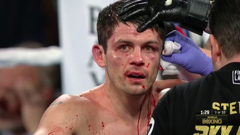 Fight Stopped With English Boxer's Ear Barely Still Attached To His Head