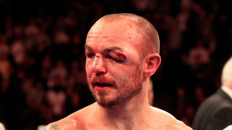 Kevin Mitchell defeated by lightweight WBC champion Jorge Linares ... fda9d2e1c60