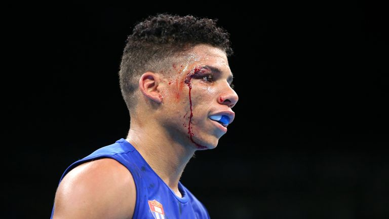 Boxers at the Olympics must now navigate past facial wounds