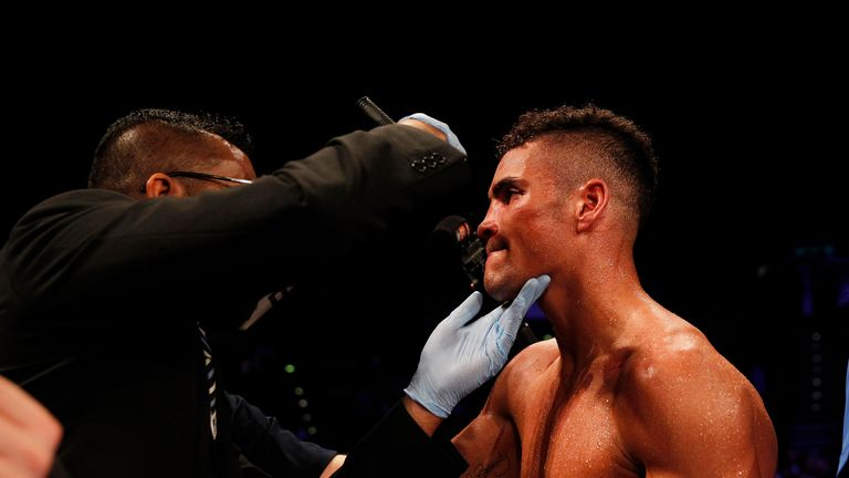 Anthony Ogogo has fractured his eye socket in two places