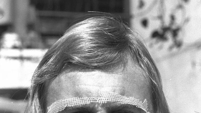 John Lever wearing the Gauze