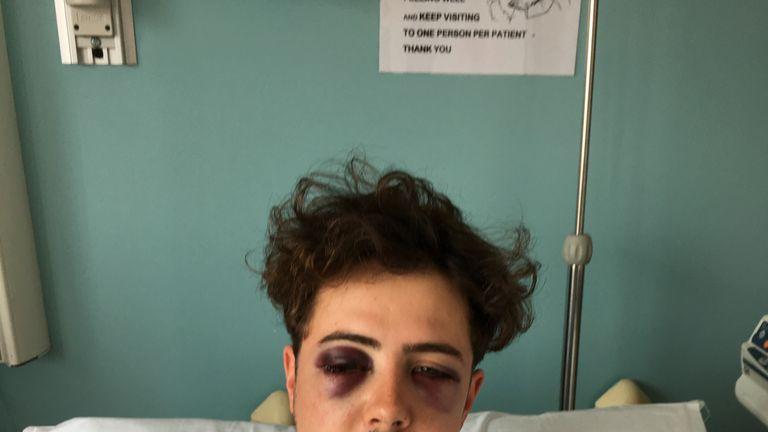 Michael Voller suffered horrific injuries (copyright: Metropolitan Police)