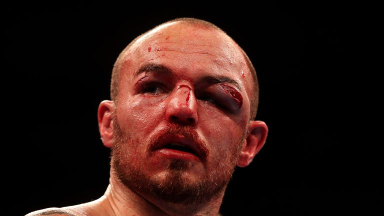 Kevin Mitchell's horrific injury against Jorge Linares