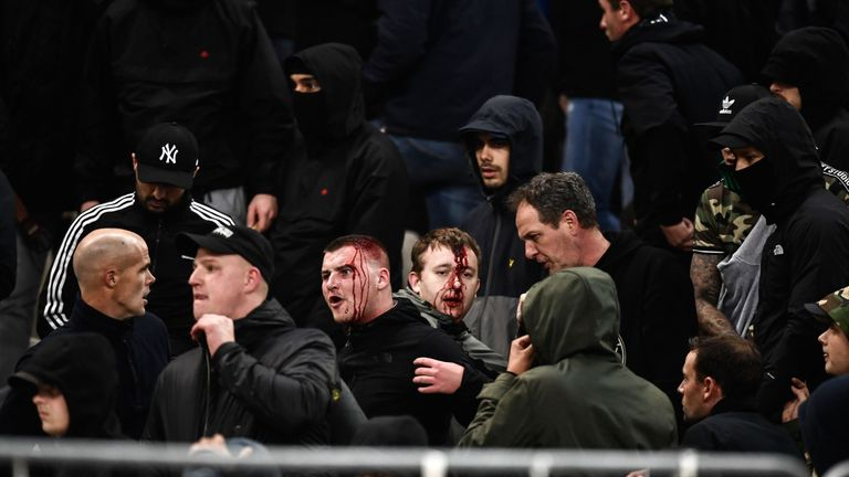 Bleeding Ajax fans react after clashes with Greek riot police