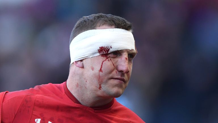Hadleigh Parkes shows his battle scars after his impressive display against Scotland