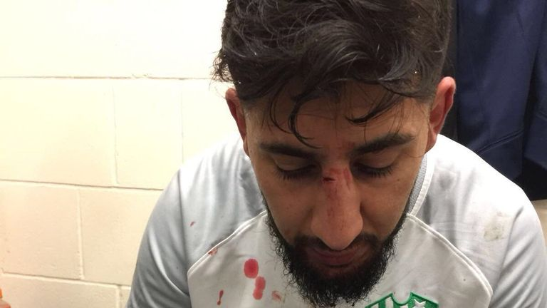 FC Peterborough's Zeeshan Ali was head-butted during a game