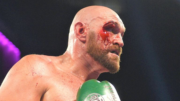 Tyson Fury healing well but trainer Ben Davison waiting to see if he recovers in time for Deontay Wilder | Boxing News |