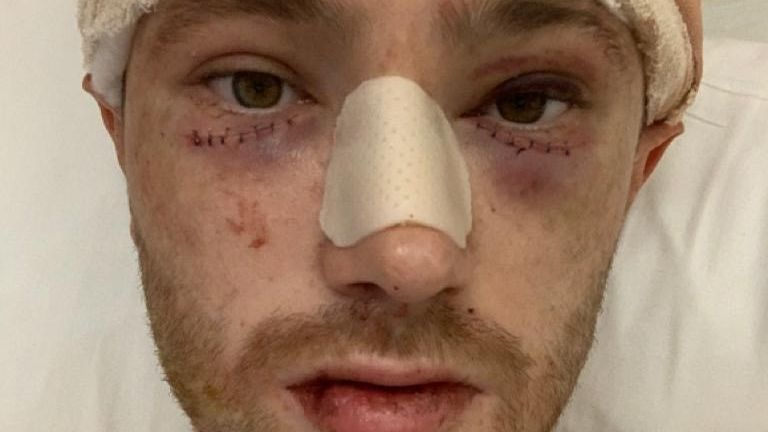 Evans in hospital following the injury in January