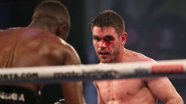 Ward suffered an awful cut in his draw with Essomba