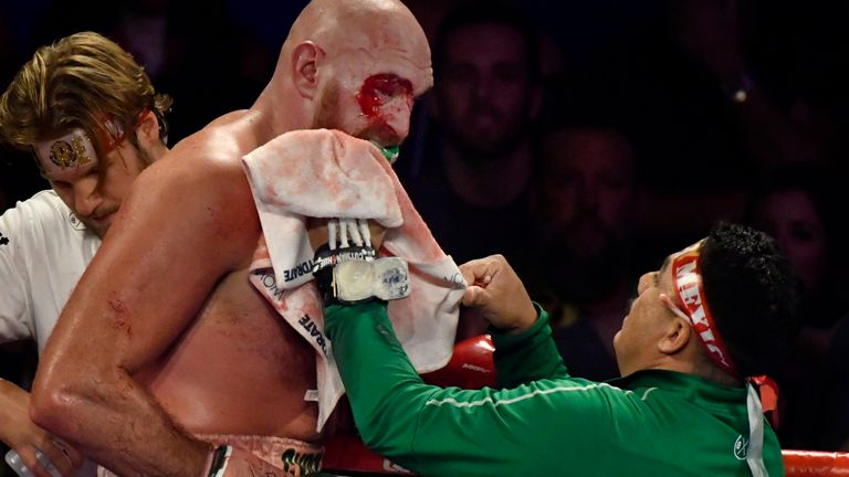 Jorge Capetillo tends to the bleeding above Fury's eye