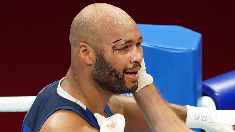 A cut ended Frazer Clarke's hopes of a gold or silver medal